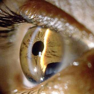 зеленая катаракта
