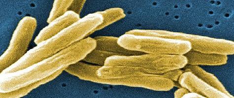 Возбудитель заболевания – микобактерия туберкулёза.